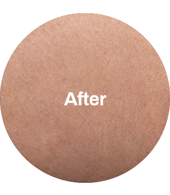 BEFORE_AFTER-min